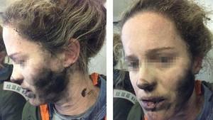 이번엔 기내서 헤드폰 배터리 폭발…호주 여성 화상